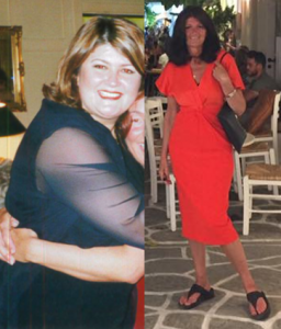 Ali - Before and after the Bariatric Group