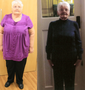 Rosemarie - Before and after the Bariatric Group